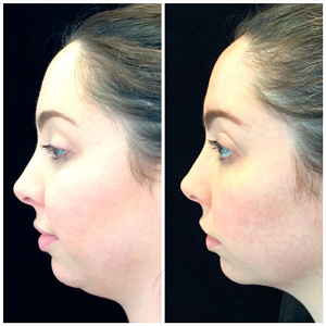 Kybella-before-and-after-images-1