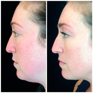 Kybella-before-and-after-images-2