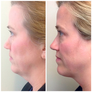 Kybella-before-and-after-images-3